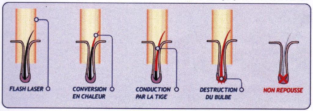 image épilation laser